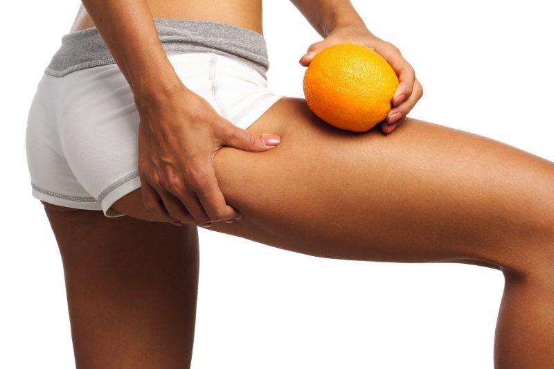 Celullite verminderen op benen en billen